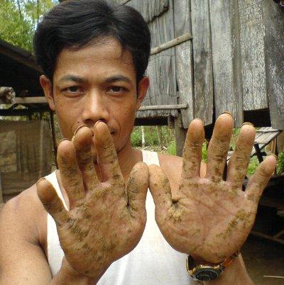 victime de la pollution naturelle à l'arsenic